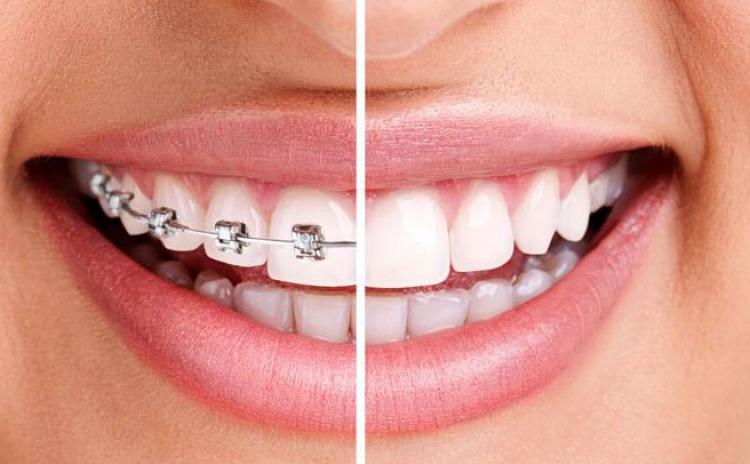 Aparat dentar invizibil safir sau apart dentar cu bracketi metalici pentru 1 arcada ( plan de tratament, consultatie, manopera), incepand de la 889 RON in loc de 1800 RON, numai la Young Smile Dental Clinic