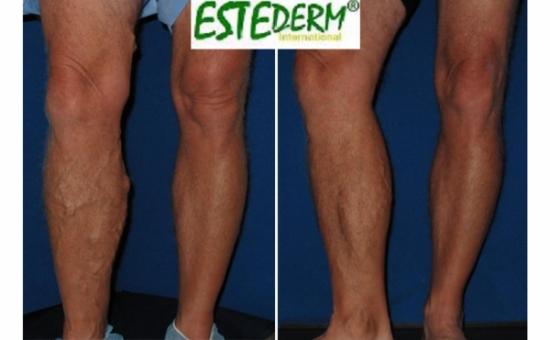 picioare frumoase fără varicoză)