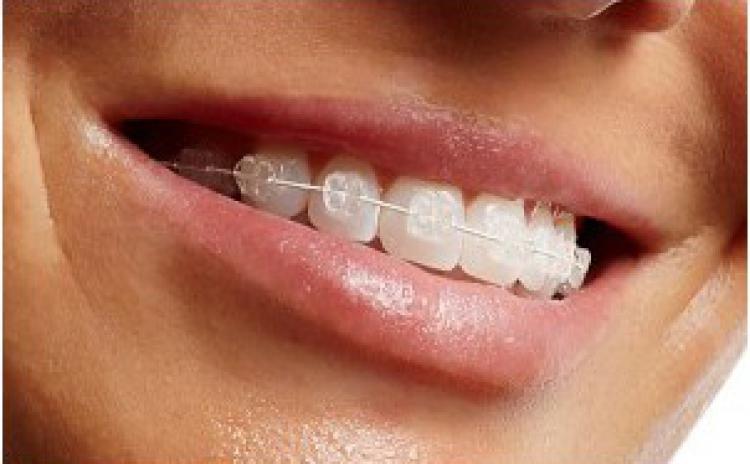 Aparat dentar transparent din SAFIR la doar 1390 RON in loc de 4100 RON