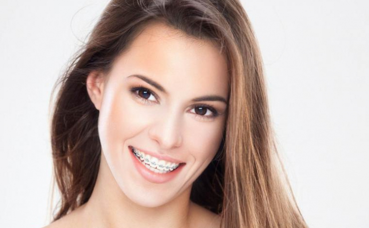 Aparat dentar METALIC, consultatie si plan de tratament la doar 840 RON in loc de 2250 RON