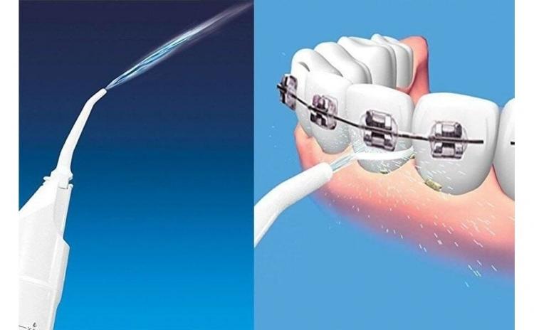 Aparat curatare - irigator bucal