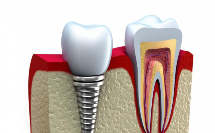 Implant dentar din titan pur