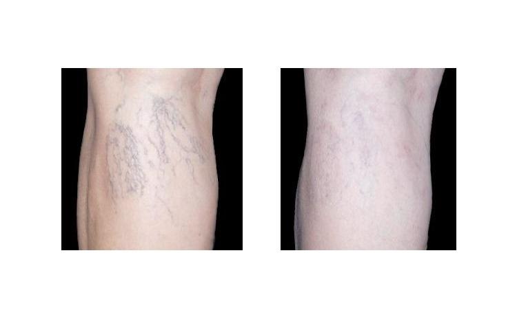 Tratament vascular cu laser