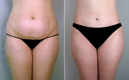 Abdominoplastie inferioara