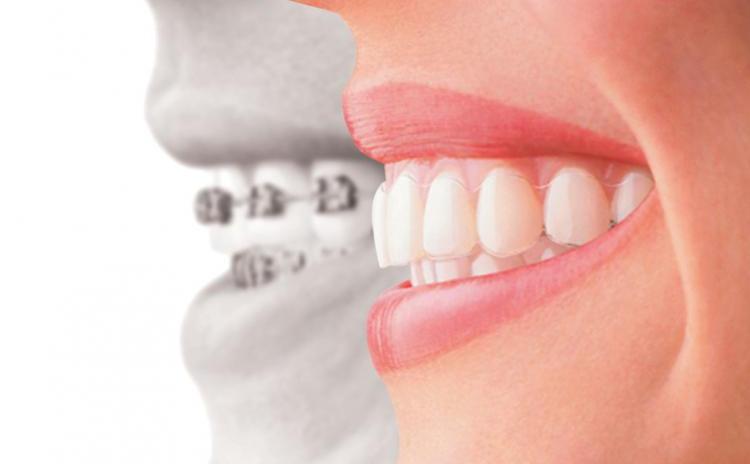 Dinti perfect aliniati la orice varsta! Consultatie de specialitate, modele de studiu si DISCOUNT la aparat dentar ortodontic pentru adulti si copii, la doar 49 RON in loc de 600 RON