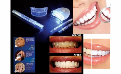 Aparat albire dentara