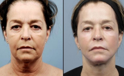 Lifting facial nechirurgical