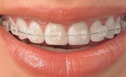 Pachet ortodontic