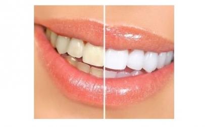 Kit de albire dinti
