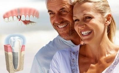 Promotie Implant Dentar