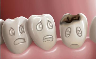 Pachet Extractie dentara