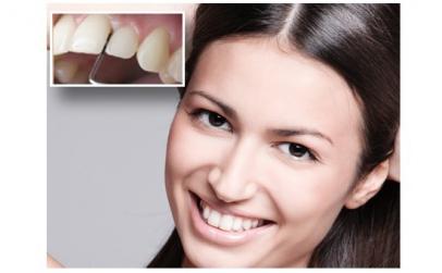 Tratament gingivita si parodontoza