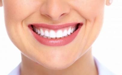 Plomba simpla in culoarea dintelui