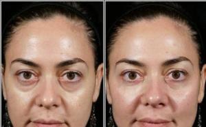 Scapa rapid de cearcane cu Teosyal Redensity II - Un gel unic special creat pentru tratarea zonei ochilor, la 499 RON in loc de 1100 RON