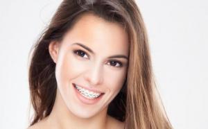 Aparat dentar METALIC, consultatie si plan de tratament, la doar 840 RON in loc de 2250 RON