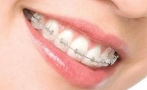 Consult ortodontic