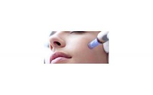 Tratament facial Microneedling