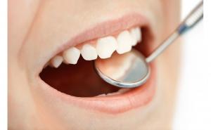 Nu rata oferta verii! Sigilare 4 molari de 6 ani (pentru copii)