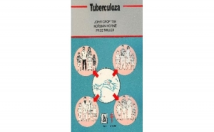 Tuberculoza, autor N. Horne, F. Miller, J. Crofton