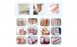 Tratament unghii impotriva micozei