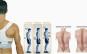 Scapa de dureri articulare sau de spate