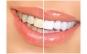 Kit individualizat de albire dentara