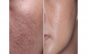 Aparat masaj facial Hydra Roller