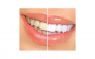 Sistem de curatare dentara